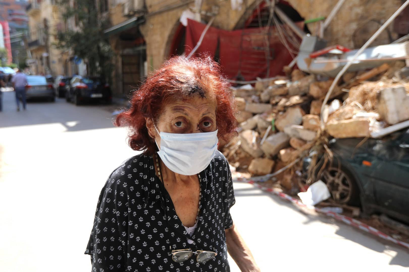 A woman, who says she was injured following Tuesday's blast, walks past damage along a street in Beirut, Lebanon, August 10, 2020. REUTERS/Mohamed Azakir - RC21BI9WNNU8
